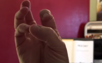 5 Ways to Fix a Collapsing Pinky